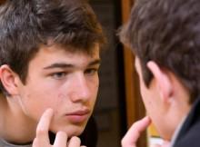 Kulit Berminyak, Berjerawat dan Hiperpigmentasi, Masalah Pubertas